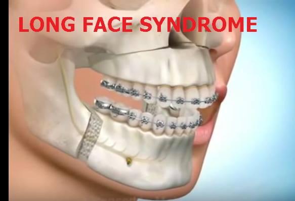 「鼻塞、異位性皮膚炎」與「正顎削骨」手術