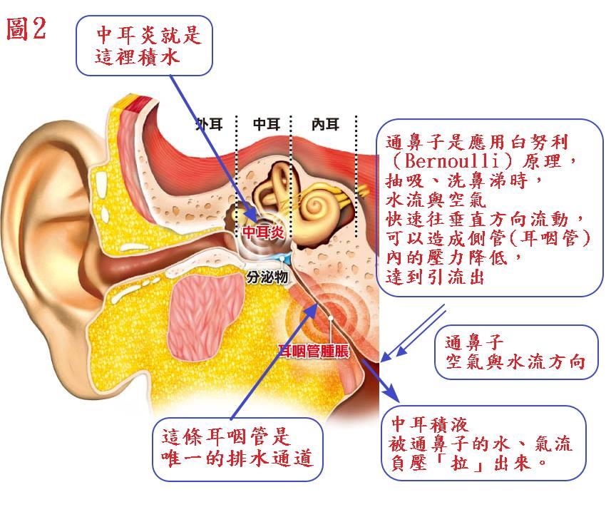 【中耳炎】積液性中耳炎的中西醫結合療