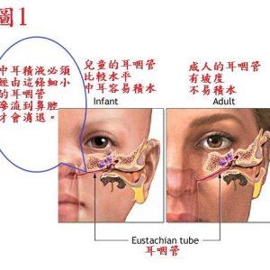 中西醫結合運用「托裏消毒飲」治療兒童積液性中耳炎之心得