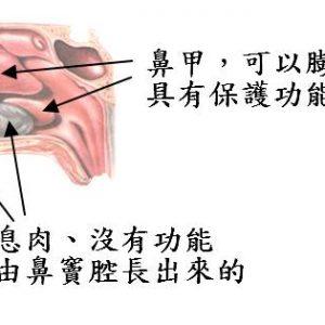 廣達光纖雷射治療下鼻甲肥大,會更有效嗎?