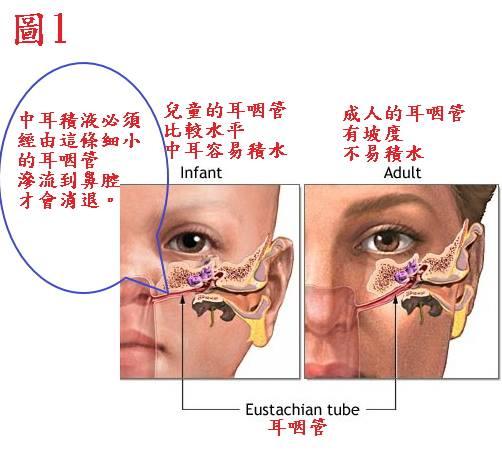 【中耳炎】中耳積水必須靠中西醫結合—由外引流、由內托膿