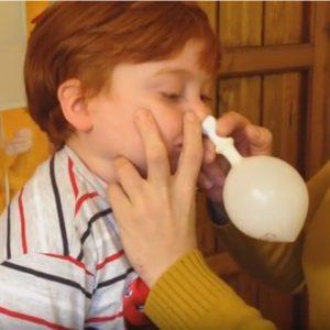 鼻孔吹氣球(Otovent)治療積液性中耳炎(OME)