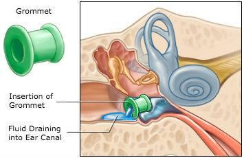 中耳積水與耳通氣管