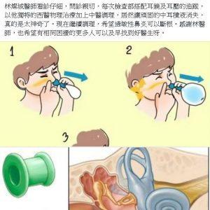 中耳積水,問題在耳咽管,不在耳膜